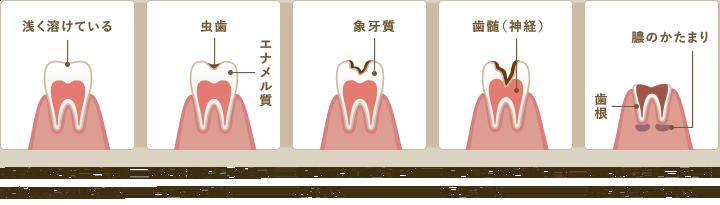むし歯の進行度