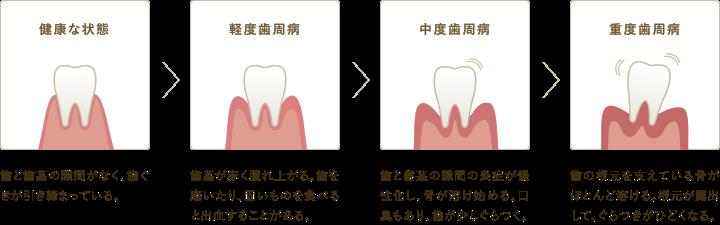 歯周病の進行度